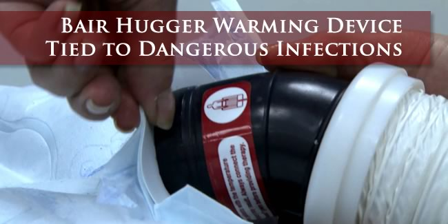 Bair Hugger Lawsuit