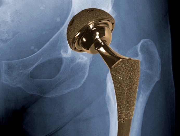 biomet_hip_implant